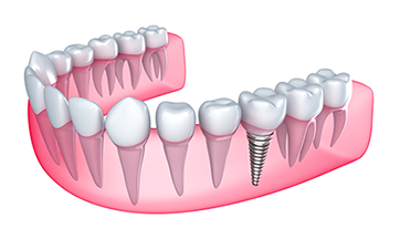 debtal implants